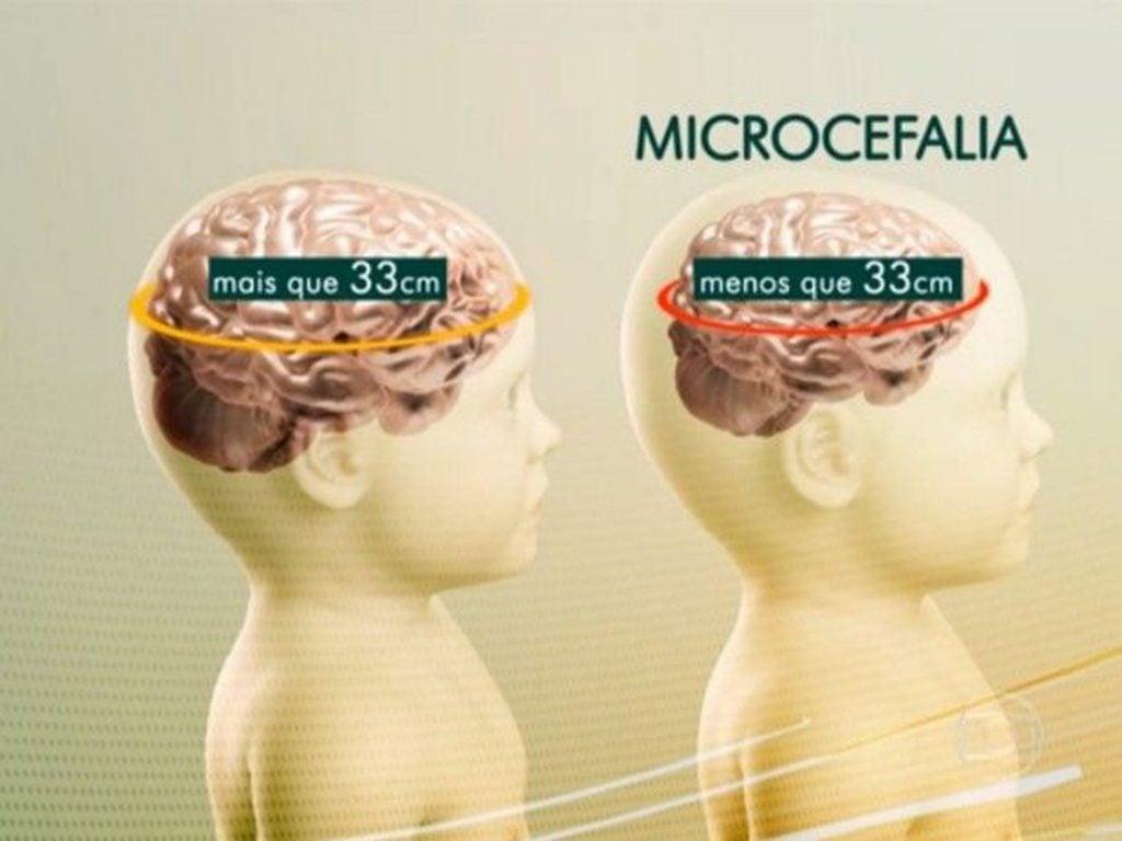 A-Micro