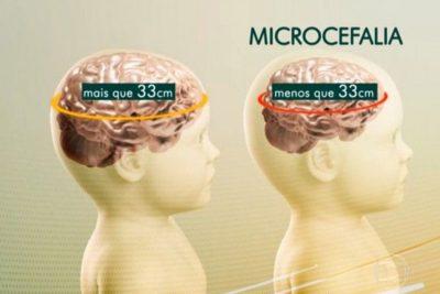 Saúde confirma 1.113 casos de microcefalia no país