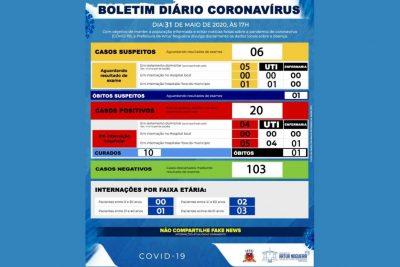 Artur Nogueira registra primeiro óbito confirmado por COVID-19
